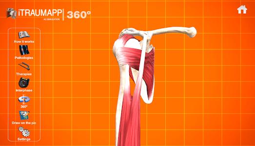 iTraumApp Shoulder Pro screenshot 4