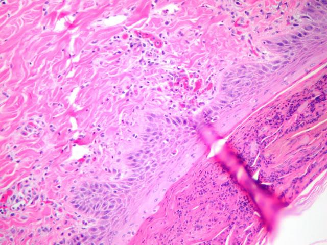 Pig skin with epidermal hyperplasia