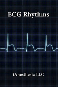 ECG Rhythms (The EKG Guide) screenshot 0