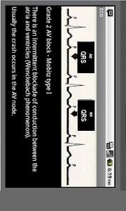 Electrocardiogram ECG Types screenshot 4