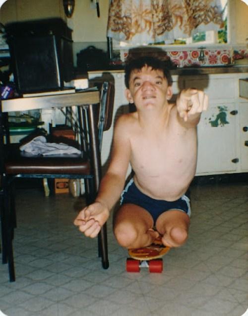 Robert Hoge as a young boy on a skateboard