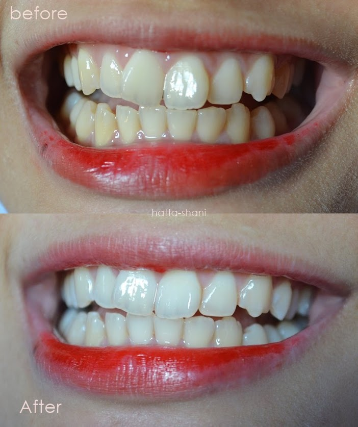 Diy 2 Minutes For Whiten Teeth Guaranteed Anne