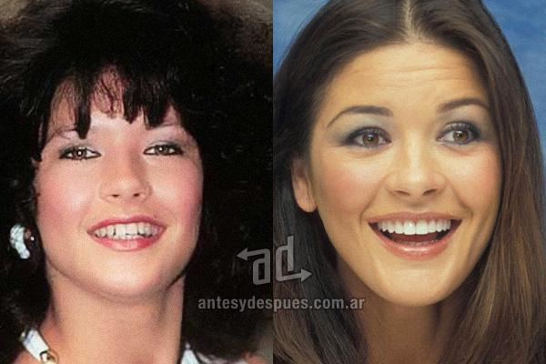 Catherine Zeta Jones y sus nuevos dientes, antes y despues