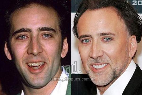 Nicholas Cage y sus nuevos dientes, antes y despues