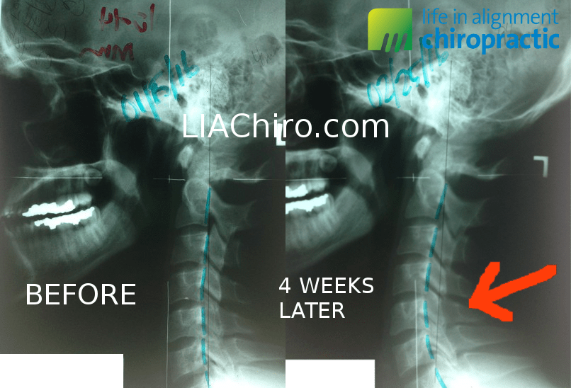 Cervical Curve Lordosis Improvement Chiropractic