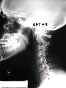 Lateral Post X Ray Upper Cervical