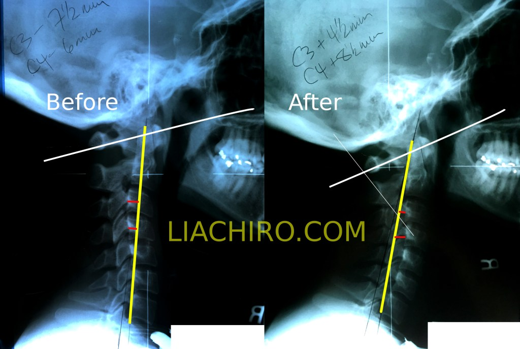 Reverse cervical curve correction