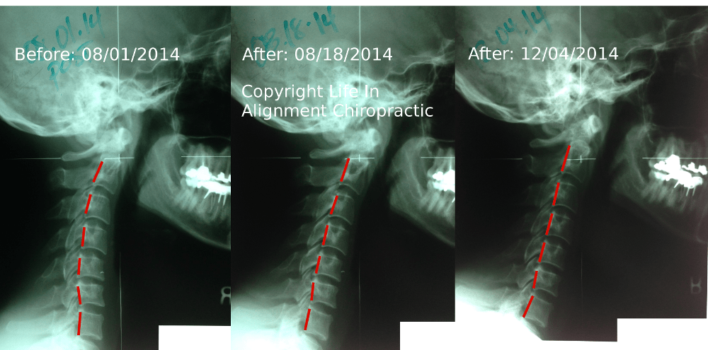 Reverse cervical curve before and after Life In Alignment Auburn Hills Michigan