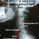 ArthritisExample1