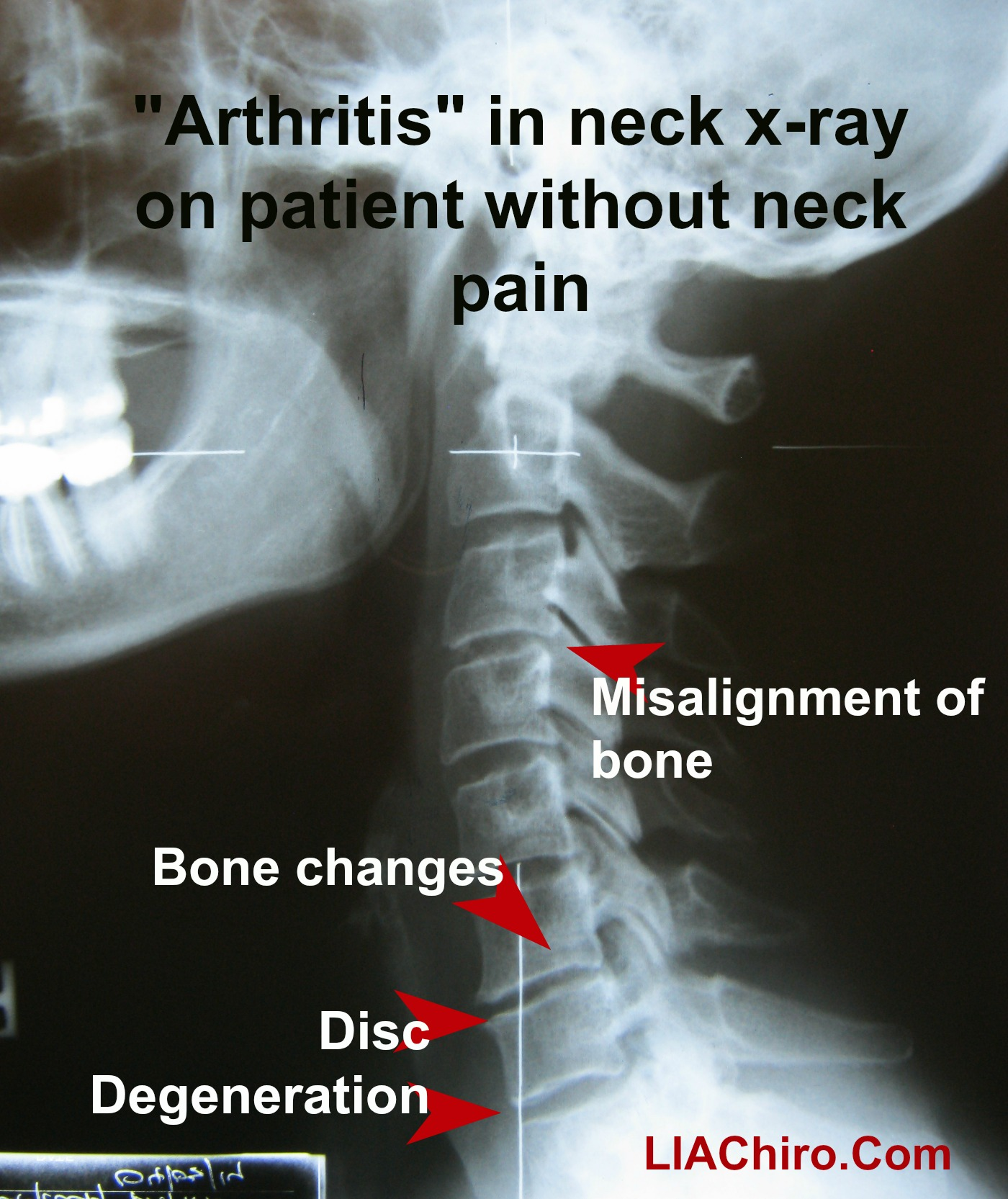 I have arthritis \u2013 can chiropractic still help me