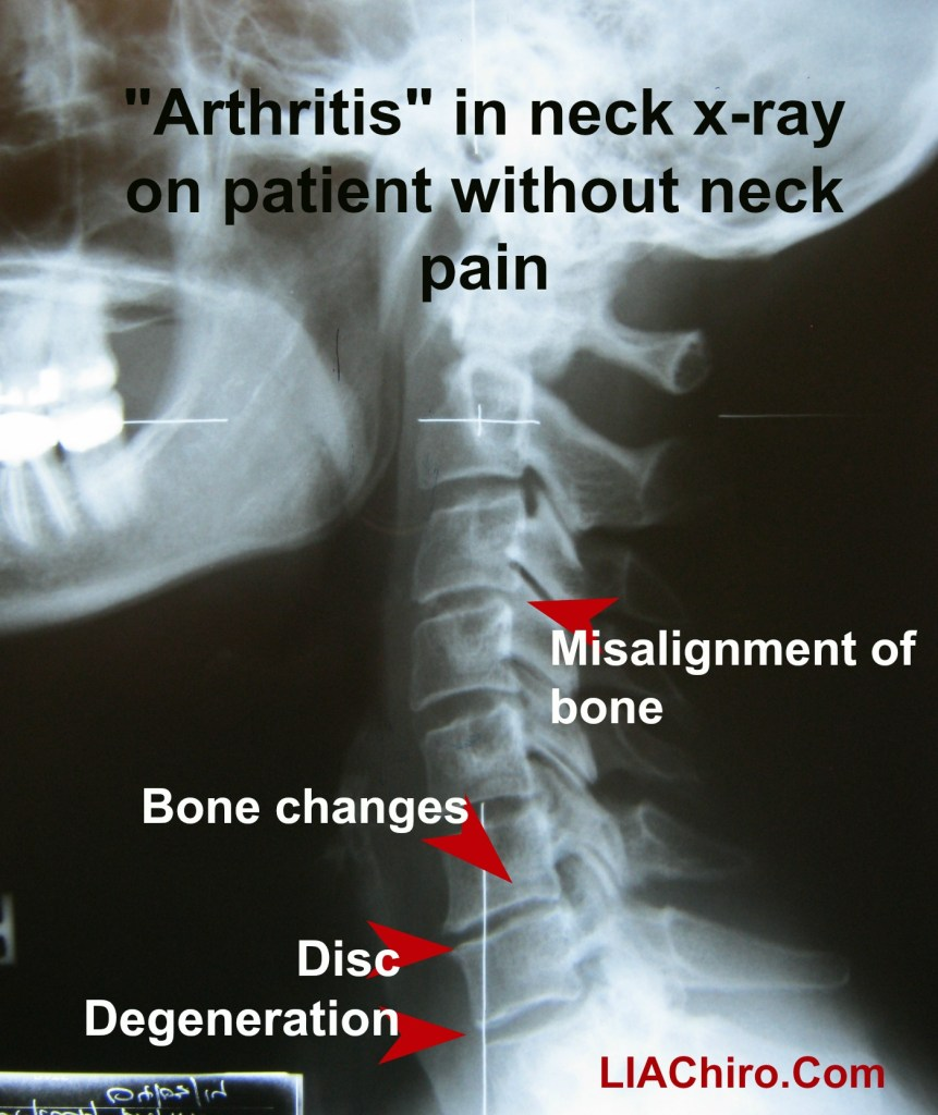 Arthritis and chirorpactic