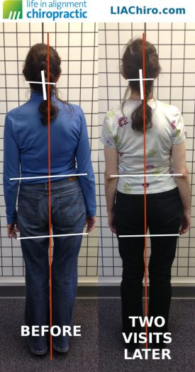 scolioisis posture before and after