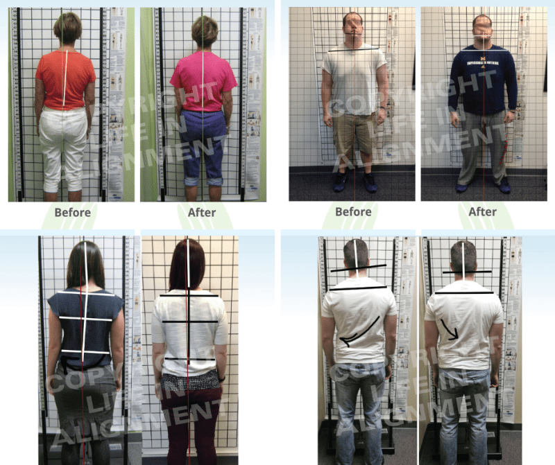 Collection of posture photos from Life In Alignment Chiropractic