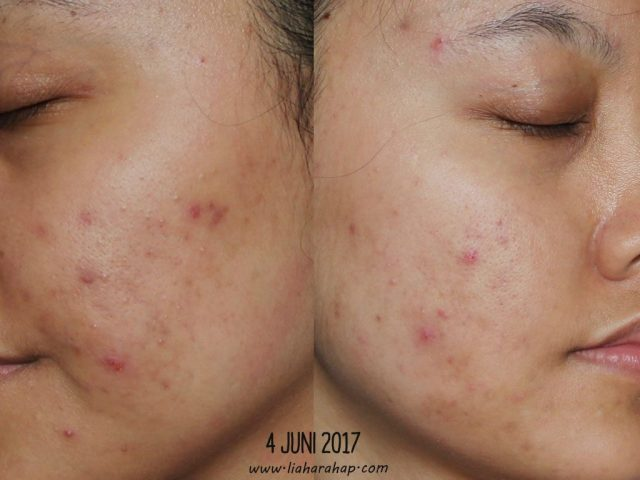 Review Verile Acne