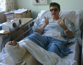 Shaun Smith with his broken leg in a plaster cast