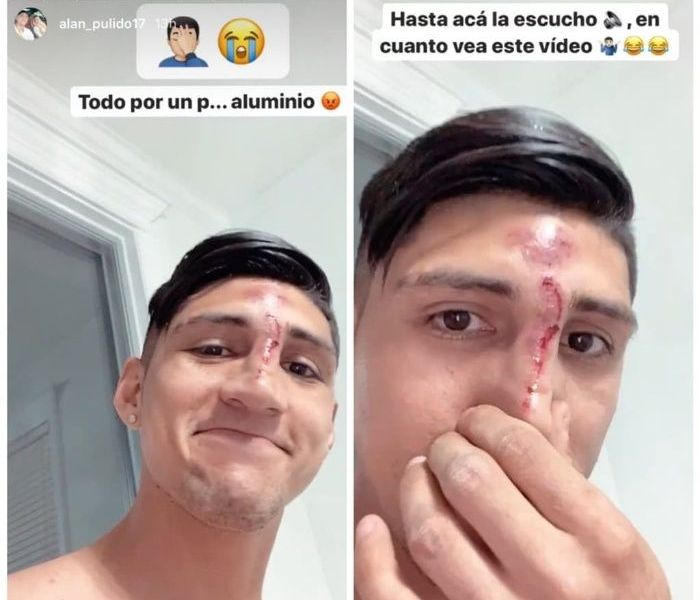 Alan Pulido sufre accidente y lo presume en redes