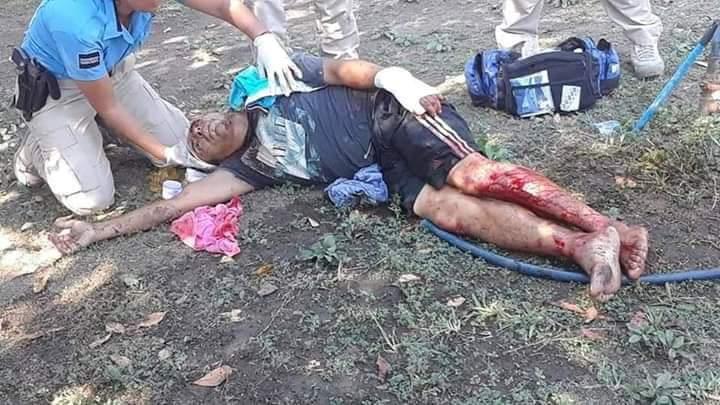 Turistas lesionan a machetazos a encargado de parque en Acapulco