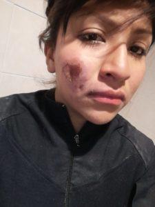 Agente herida en #MarchaM8 muestra su lesión y lamenta agresión a policías