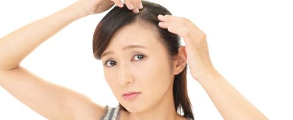 つむじが薄い?禿げ?女性特有の薄毛と対策法