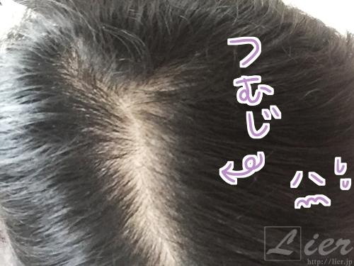 マイナチュレ 育毛サプリ 口コミレビュー