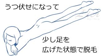 Vライン-Iライン-Oライン-脱毛
