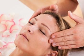 美容鍼灸をする女性