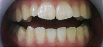 大人気!痛くない歯の最先端ホワイトニング