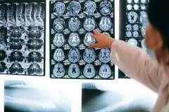 Kaip galime padėti savo smegenims pavėlinti pažintį su senatvinėmis ligomis?
