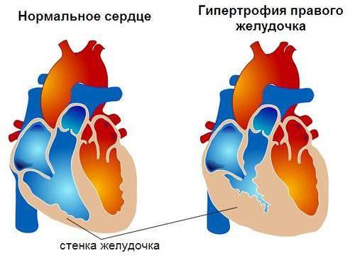 EKG dekodavimas vaikams yra norma ir pažeidimas - Hipertenzija November