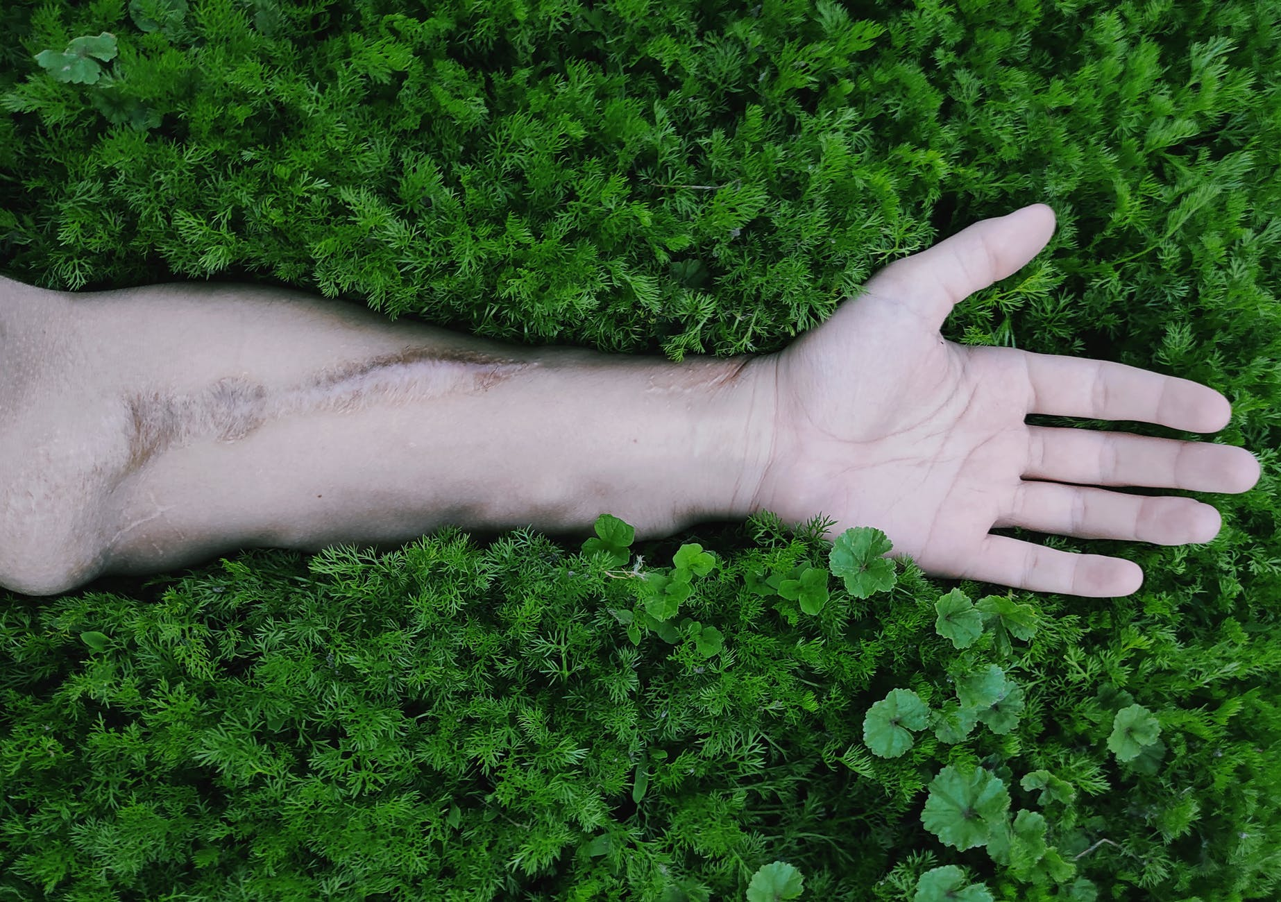 persons left hand on green grass