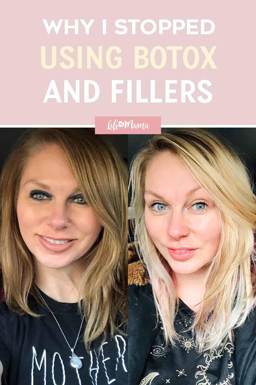stopped using botox