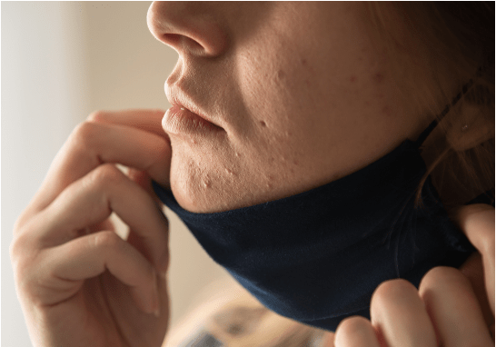 tips to avoid mask-acne