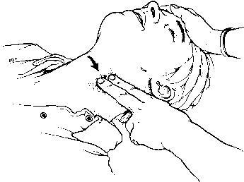 Cara memeriksa denyut nadi pada leher