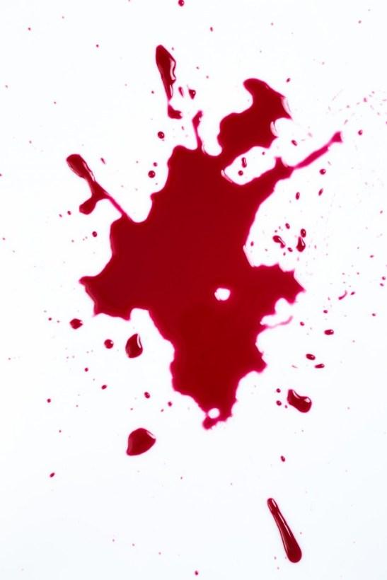 有痔瘡大便時出血怎麼辦