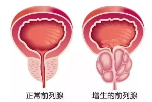 前列腺肥大