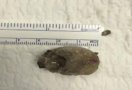 扁桃腺結石