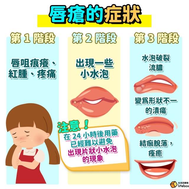 唇瘡-爛嘴角-症狀