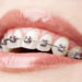 Top 4 Tips on How to Care For Braces