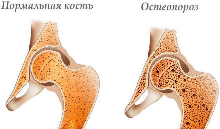 gyakorlatok sorozata a térdízületek ízületi gyulladásának kezelésére