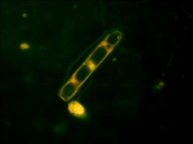A diatom, one form of single celled, microscopic Arctic algae, as seen under a flourescence microscope. Photo: Kyle Kinzler.