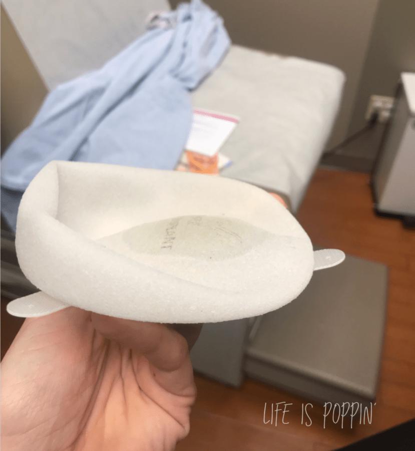 tissue-expander