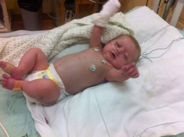 CHD Angels - Brooke before second surgery