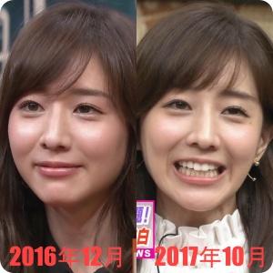 田中みな実 顔の変化