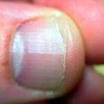 Bitten fingernail
