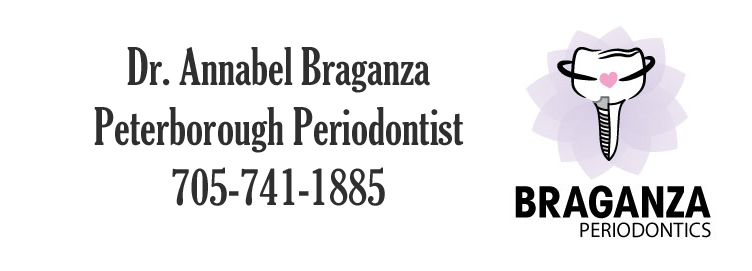 Peterborough Periodontists, Kawarthas Dentists, Dental Implants Peterborough, Dental Health, Gum Disease,
