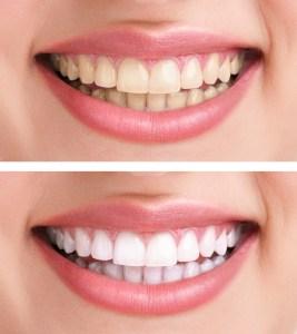 Brampton Dentists, Top Dentist in Brampton, Brampton Dental Offices, Dental Care, Teeth Whitening Products, Yellow Teeth, Stained teeth, Teeth Whitening, What causes Yellow teeth,