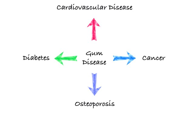 Cardiovascular Disease, Cancer, Osteoporosis, Diabetes, Gum Disease, Peterborough Periodontist, Peterborough Dentist,