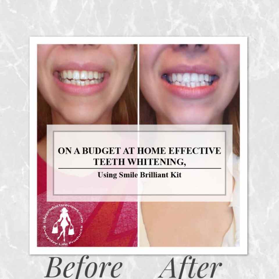 On-a-budget-teeth-whitening-at-home-detailed-smile-brilliant-review