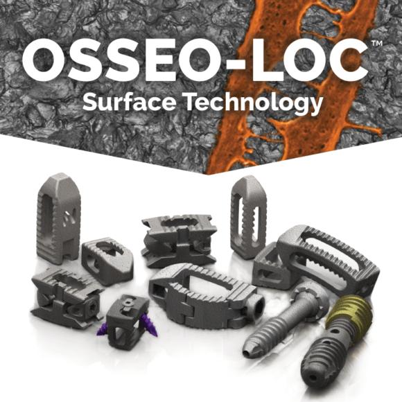 OSSEO-LOC™ ADDITIONS