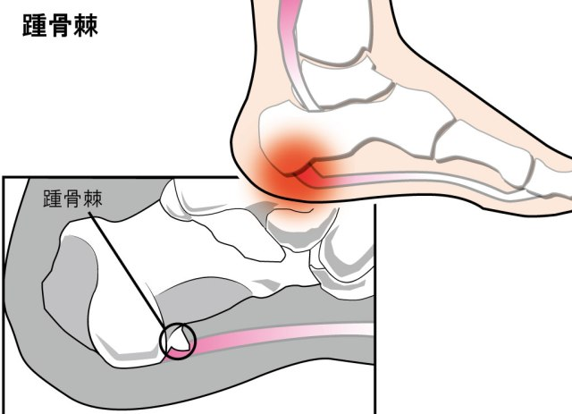踵骨棘が発症する場所と対処法